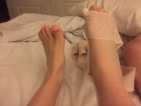 Heather Rose Broken Foot